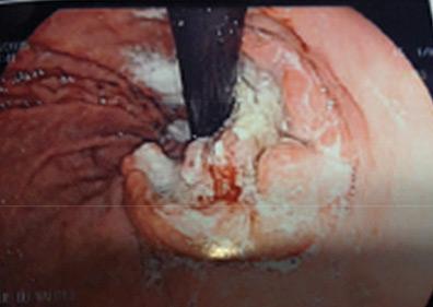 Vue per endoscopique de la tumeur (vision rétrograde) avant le traitement néoadjuvant