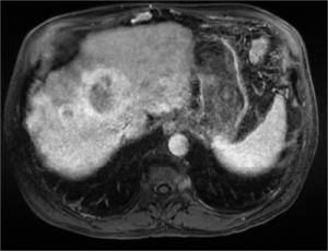 Cas Clinique : 1 cas de Carcinome Hépatocellulaire